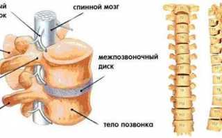 Симптомы межпозвоночной грыжи шморля