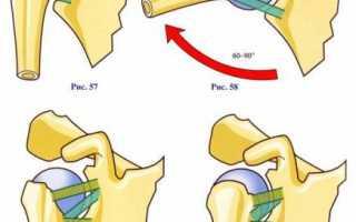Плечевой сустав строение сустава