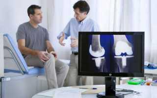 Возможные осложнения после замены коленного сустава