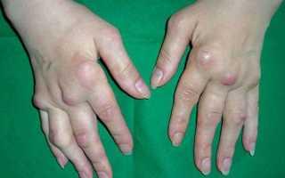 Артроз пальцев рук: симптомы и лечение, причины, полное описание заболевания