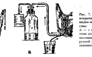 Классификация абсцессов и флегмон шеи