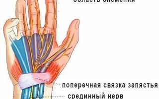 Рука онемела и не проходит: что делать