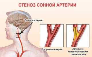 Причины проблем и заболеваний сосудов шеи: диагностика и их лечение